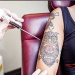 Dövme Silme Yöntemleri ve Uygulamaları